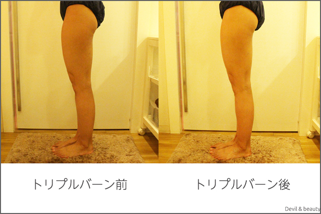 before-after-miss-paris-diet-center-triple-burns-z-body4 - image