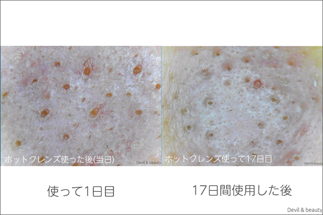 before-after-refa-hot-cleanse-cl-days17-1 - image
