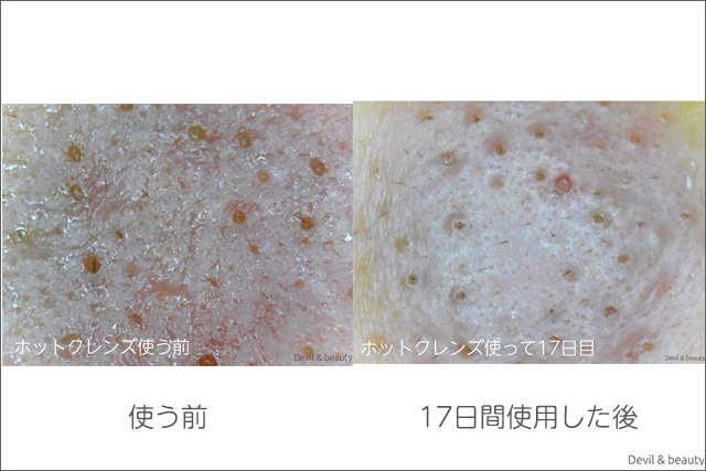 before-after-refa-hot-cleanse-cl-days17-2 - image