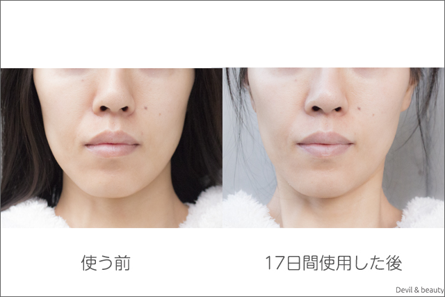before-after-refa-hot-cleanse-cl-days17-3 - image