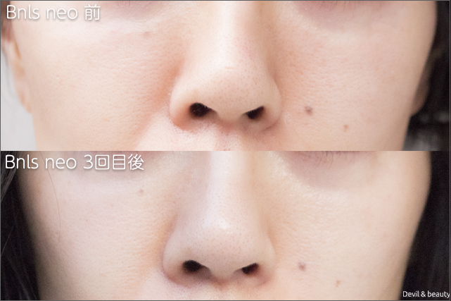 before-after-bnls-neo-3st-nose-1 - image
