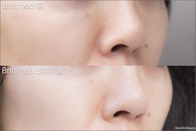 before-after-bnls-neo-3st-nose-2 - image