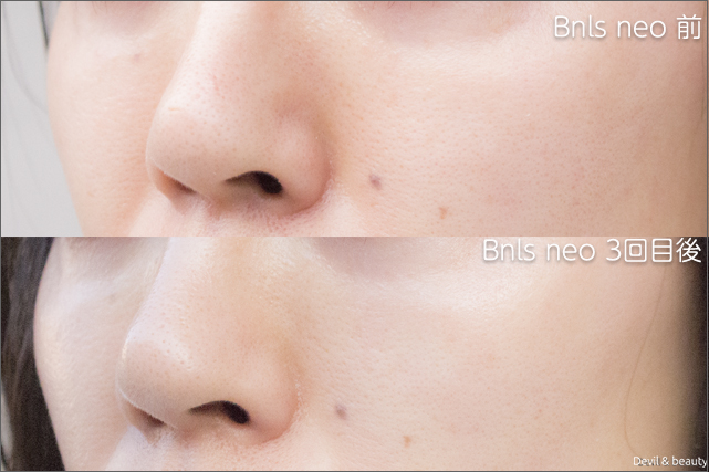 before-after-bnls-neo-3st-nose-3 - image