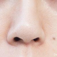 bnls-neo-3st-nose3-200x200 - image