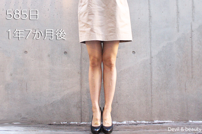 calves-botox-585days-1 - image