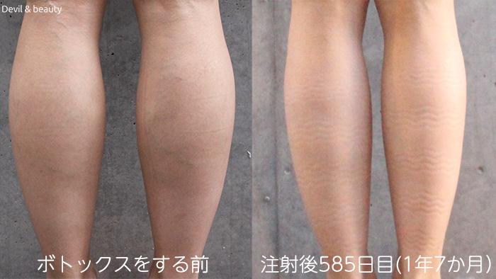 calves-botox-day-585 - image