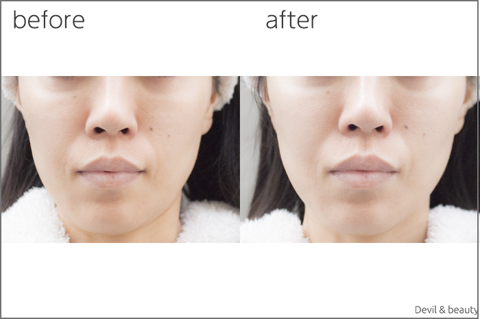 before-after-etvos-skin-peel-gel - image