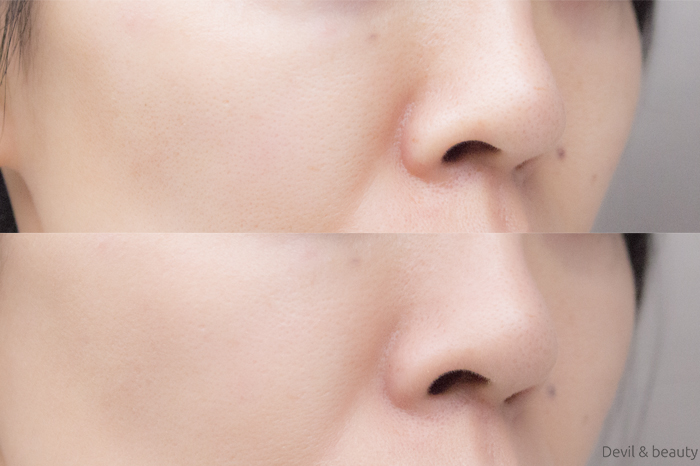 before-after-only-minerals-aqua-l-bb-cream1 - image
