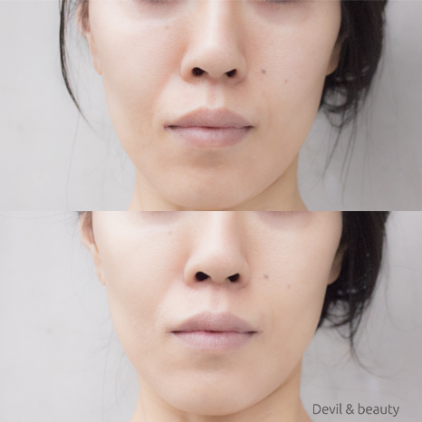 before-after-only-minerals-aqua-l-bb-cream2 - image