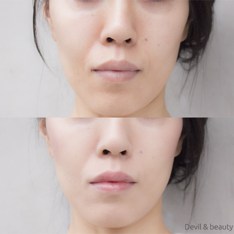before-after-only-minerals-aqua-l-bb-cream3 - image