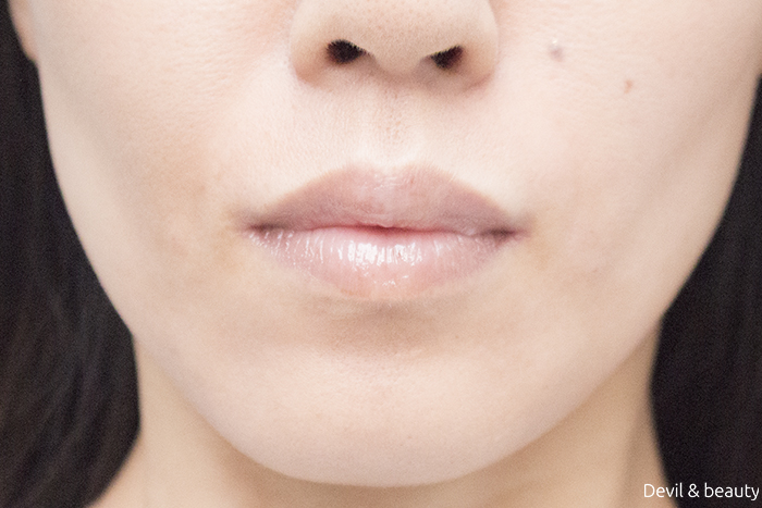 hyaluronic-acid-injection-nasolabial-folds-juvedermvista-ultra-plus-immediately-after1 - image