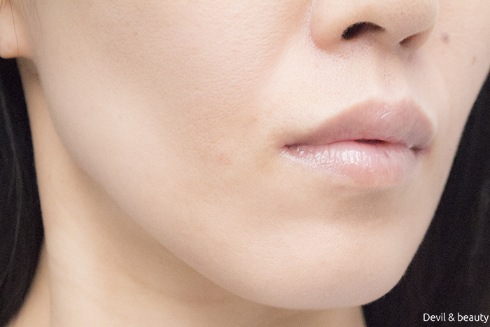 hyaluronic-acid-injection-nasolabial-folds-juvedermvista-ultra-plus-immediately-after2 - image