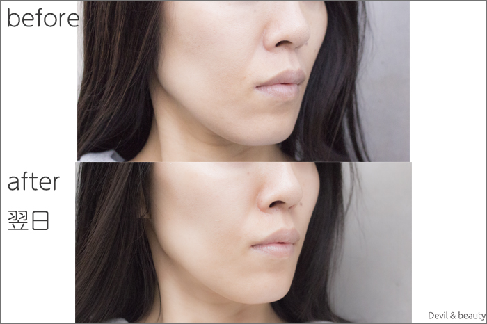 hyaluronic-acid-injection-nasolabial-folds-juvedermvista-ultra-plus-nextday2 - image