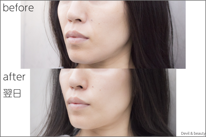 hyaluronic-acid-injection-nasolabial-folds-juvedermvista-ultra-plus-nextday3 - image