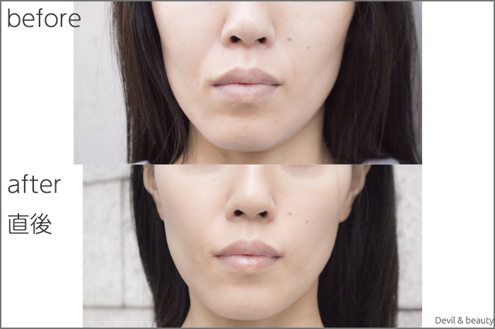 hyaluronic-acid-injection-nasolabial-folds-juvedermvista-ultra-plus1 - image