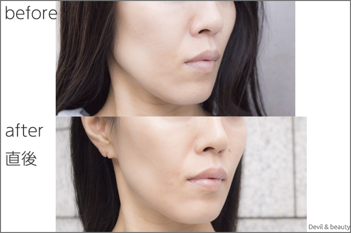 hyaluronic-acid-injection-nasolabial-folds-juvedermvista-ultra-plus2 - image