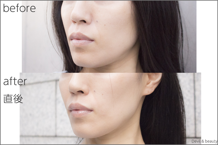 hyaluronic-acid-injection-nasolabial-folds-juvedermvista-ultra-plus3 - image