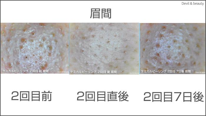 after-7th-day-salicylic-acid-second-blow - image