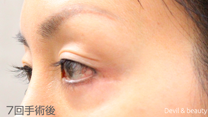 after-7th-surgery-eye5 - image