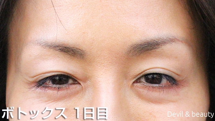 after-botox-injection-eyes-1day - image