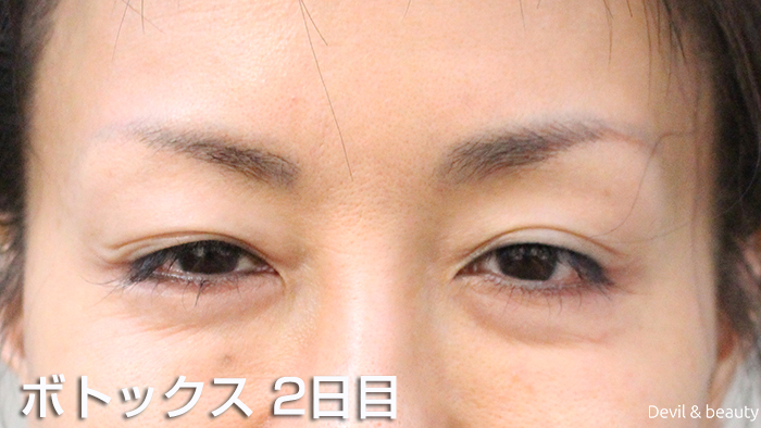 after-botox-injection-eyes-2nd-day - image