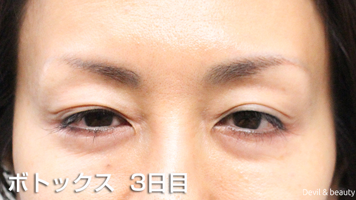 after-botox-injection-eyes-3th-day - image