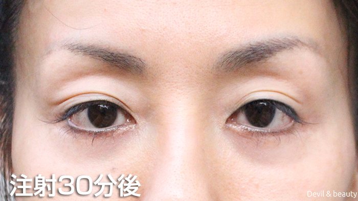 after-botox-injection-eyes - image