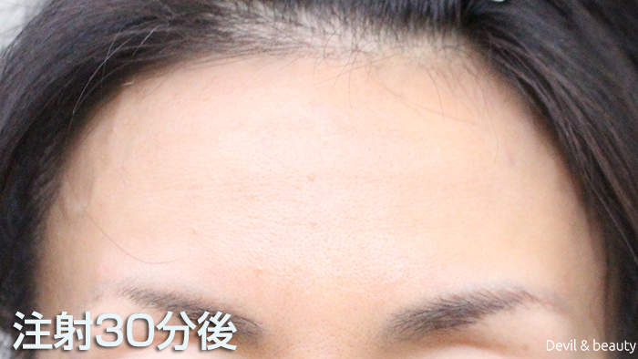 after-botox-injection-forehead - image