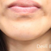after-botox-jaw1-200x200 - image