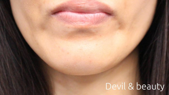 after-botox-jaw1-e1467003060583 - image