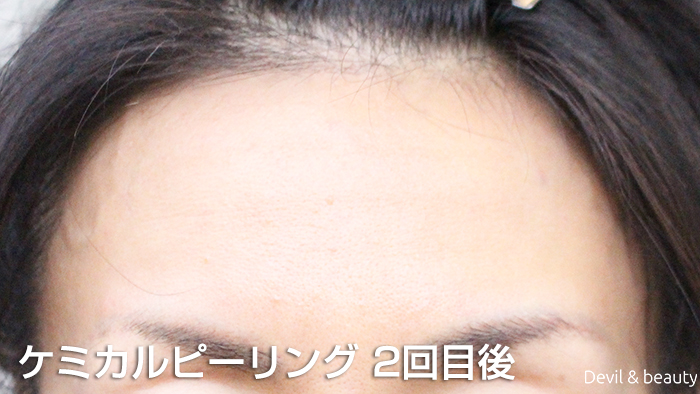 after-chemical-peeling-2nd-time4 - image