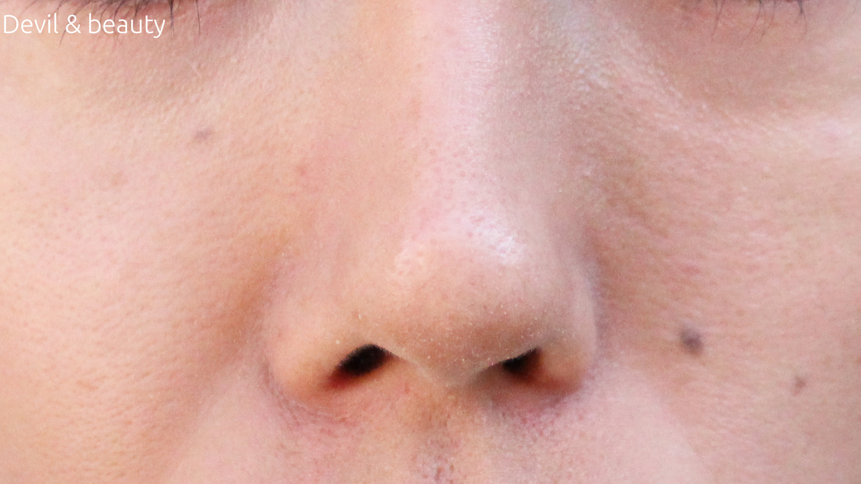 after-l-nose-secreter1 - image