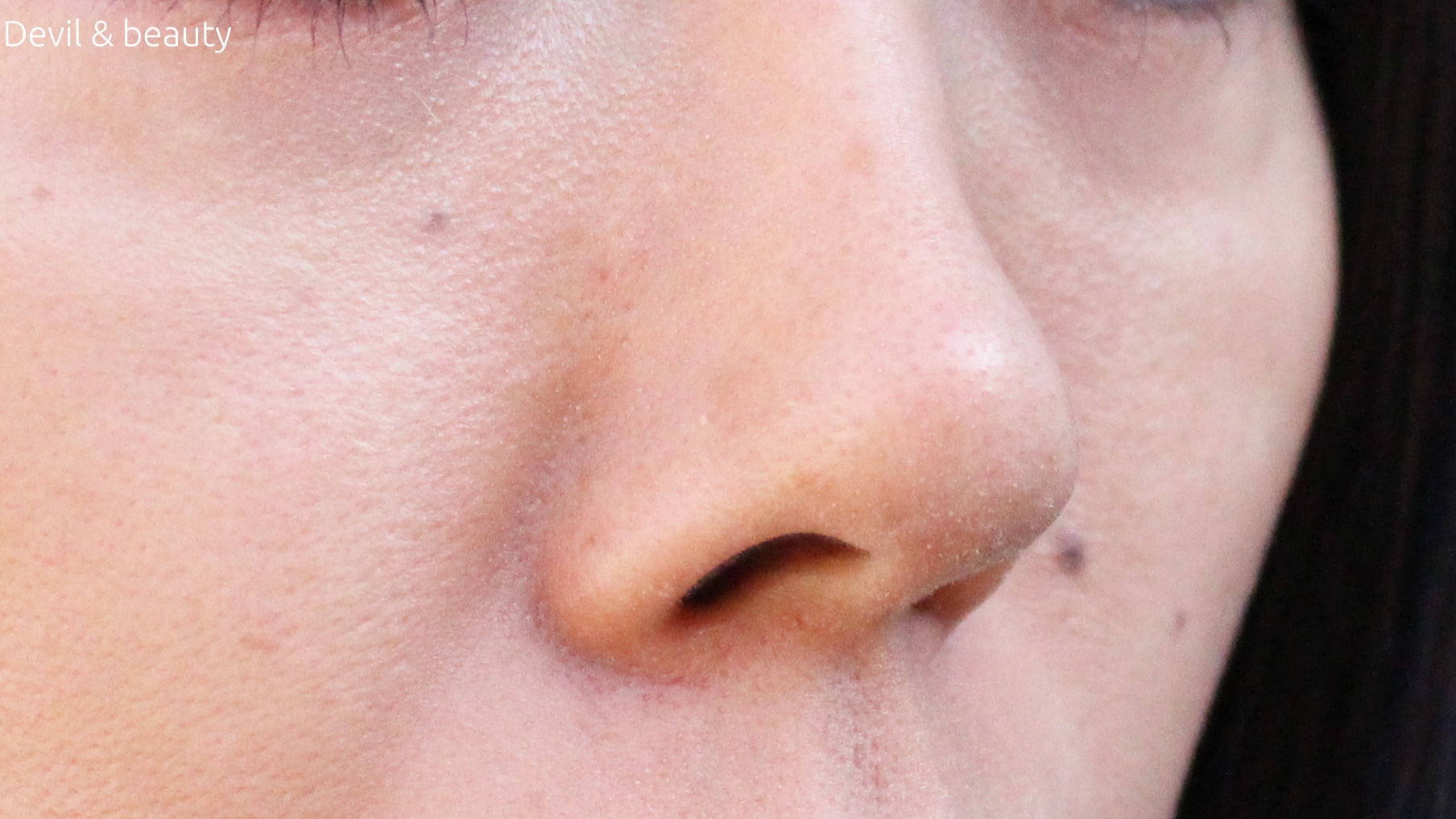 after-ml-nose-secreter2 - image