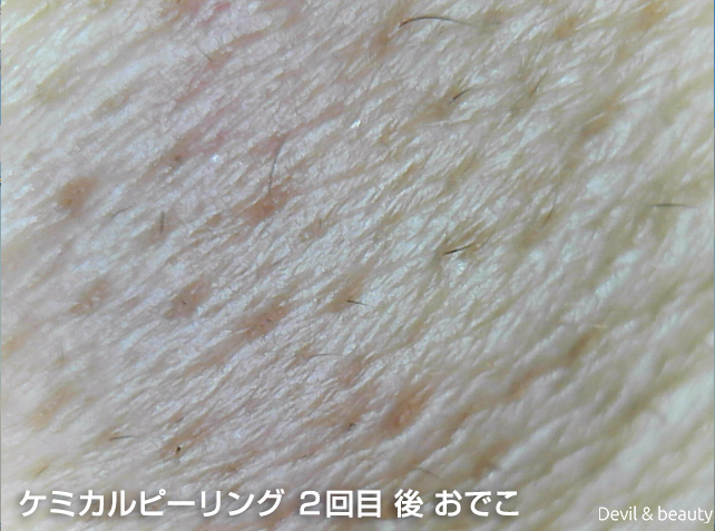 after-salicylic-acid-second-forehead - image