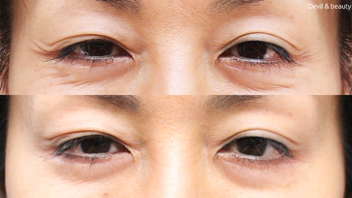 before-after-botox-eyes - image