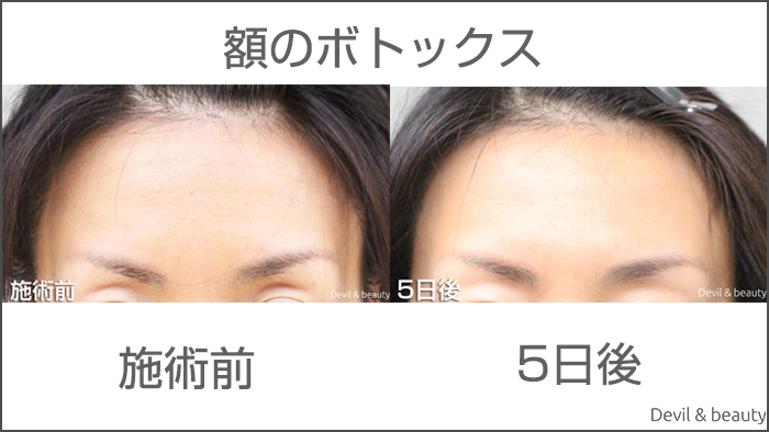 before-after-botox-forehead2 - image