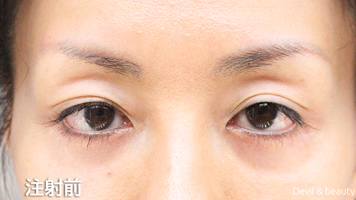 before-botox-injection-eyes - image