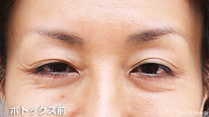 before-botox-injection-eyes2 - image