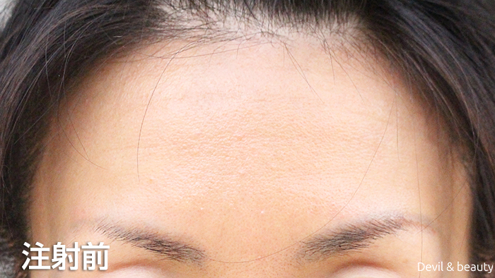 before-botox-injection-forehead - image