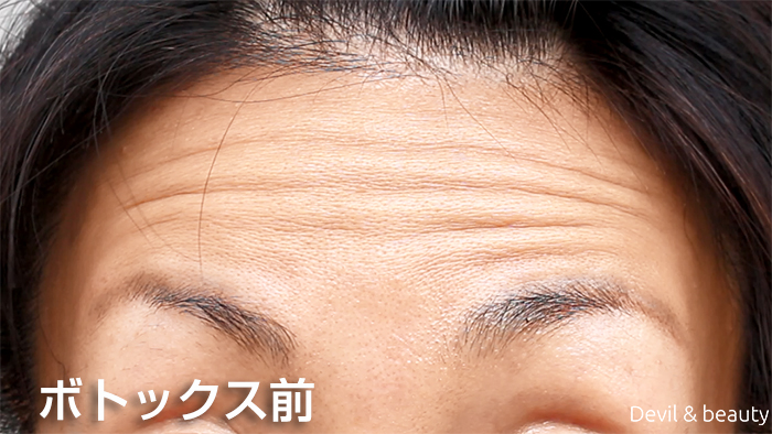 before-botox-injection-forehead2 - image