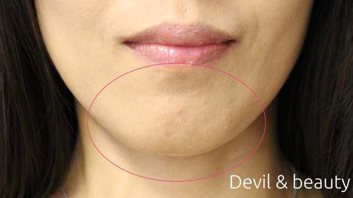 before-botox-jaw1-e1467003103148 - image