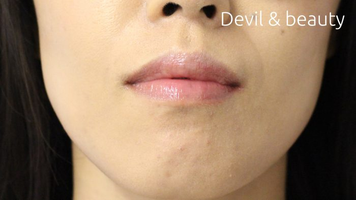 before-botox-jaw2-e1467003135498 - image