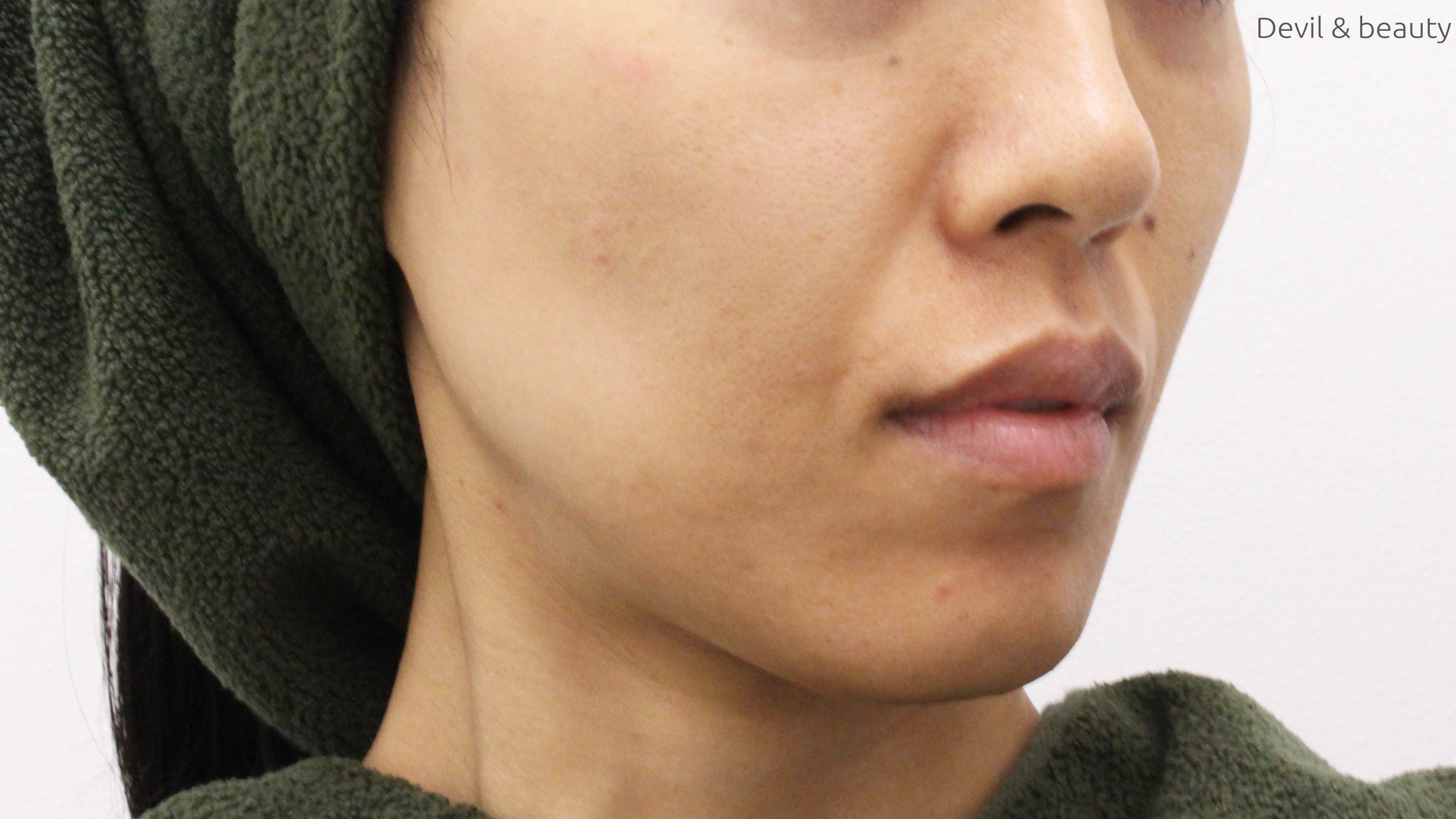 before-face-hair-loss-toitoitoi-clinic2-1 - image