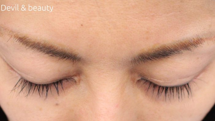 before-scalp-d-purefree-eyelash-e1476458192160 - image