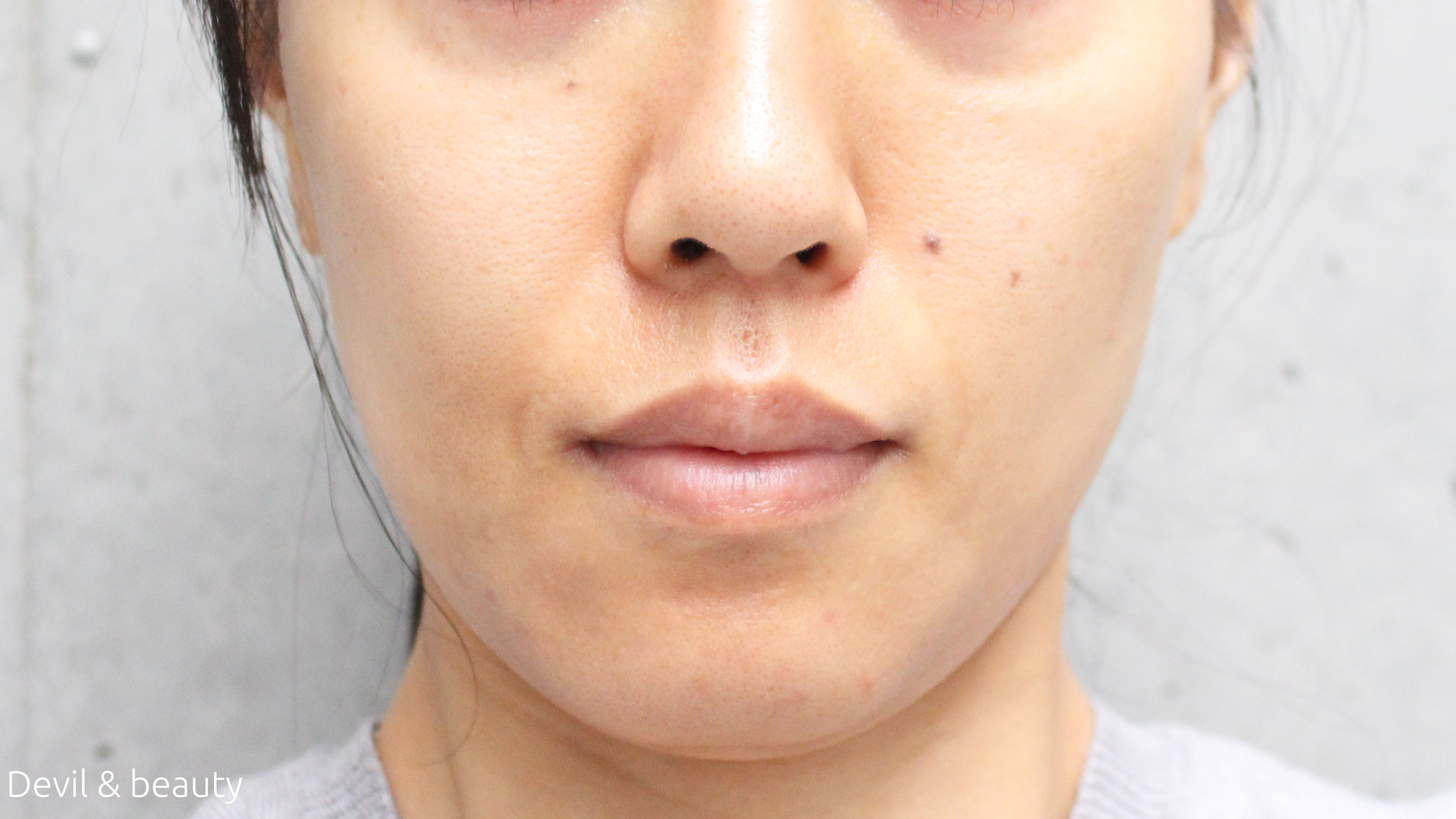before-use-jurlique-refining-treatment - image