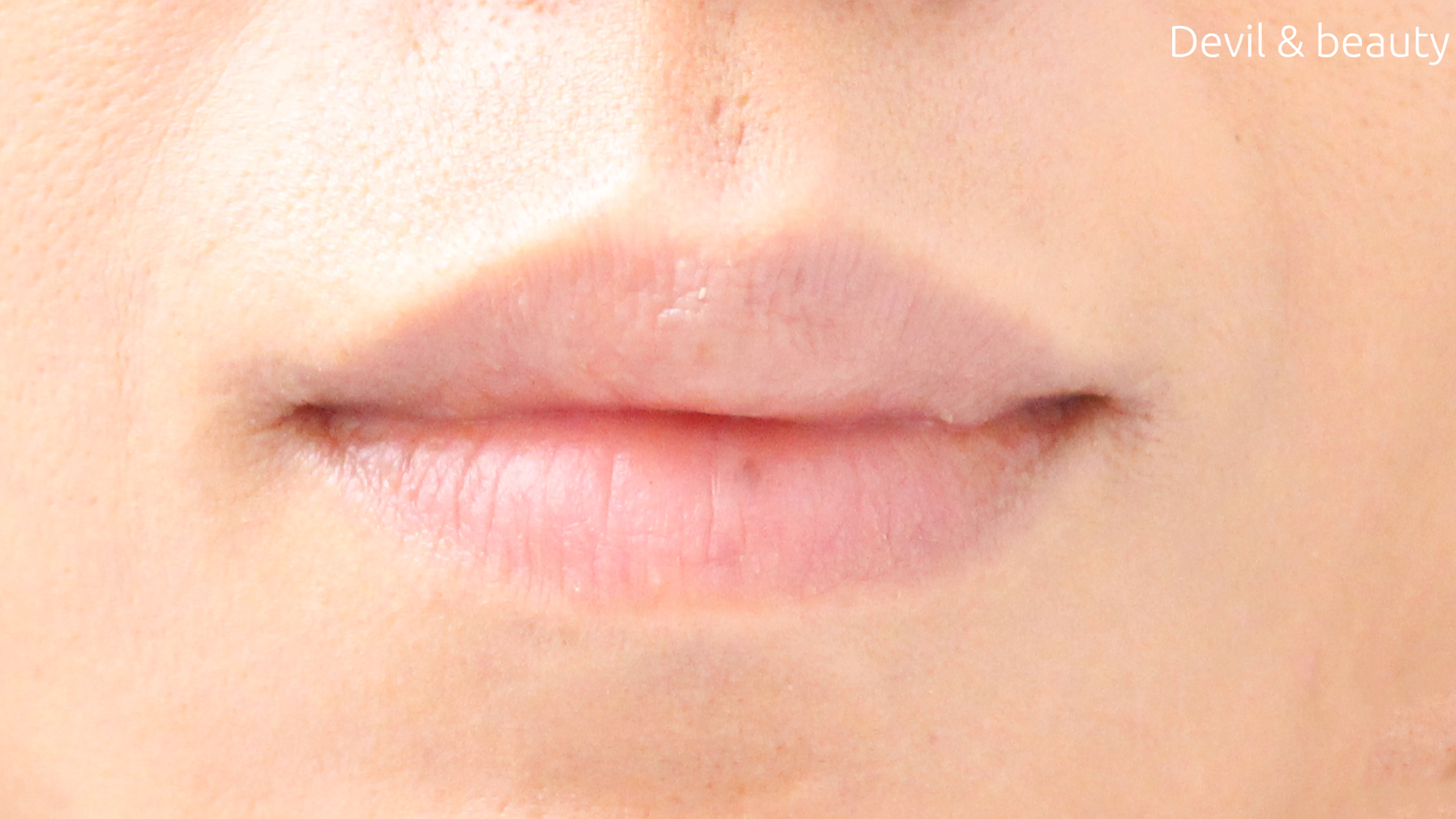 before-use-three-of-lip - image