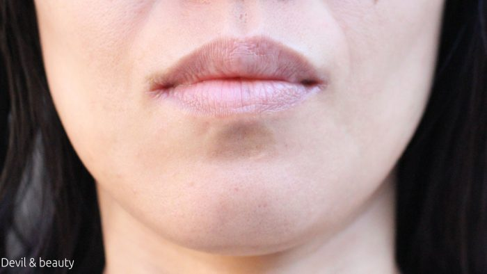 botox-chin5-e1485068197138 - image