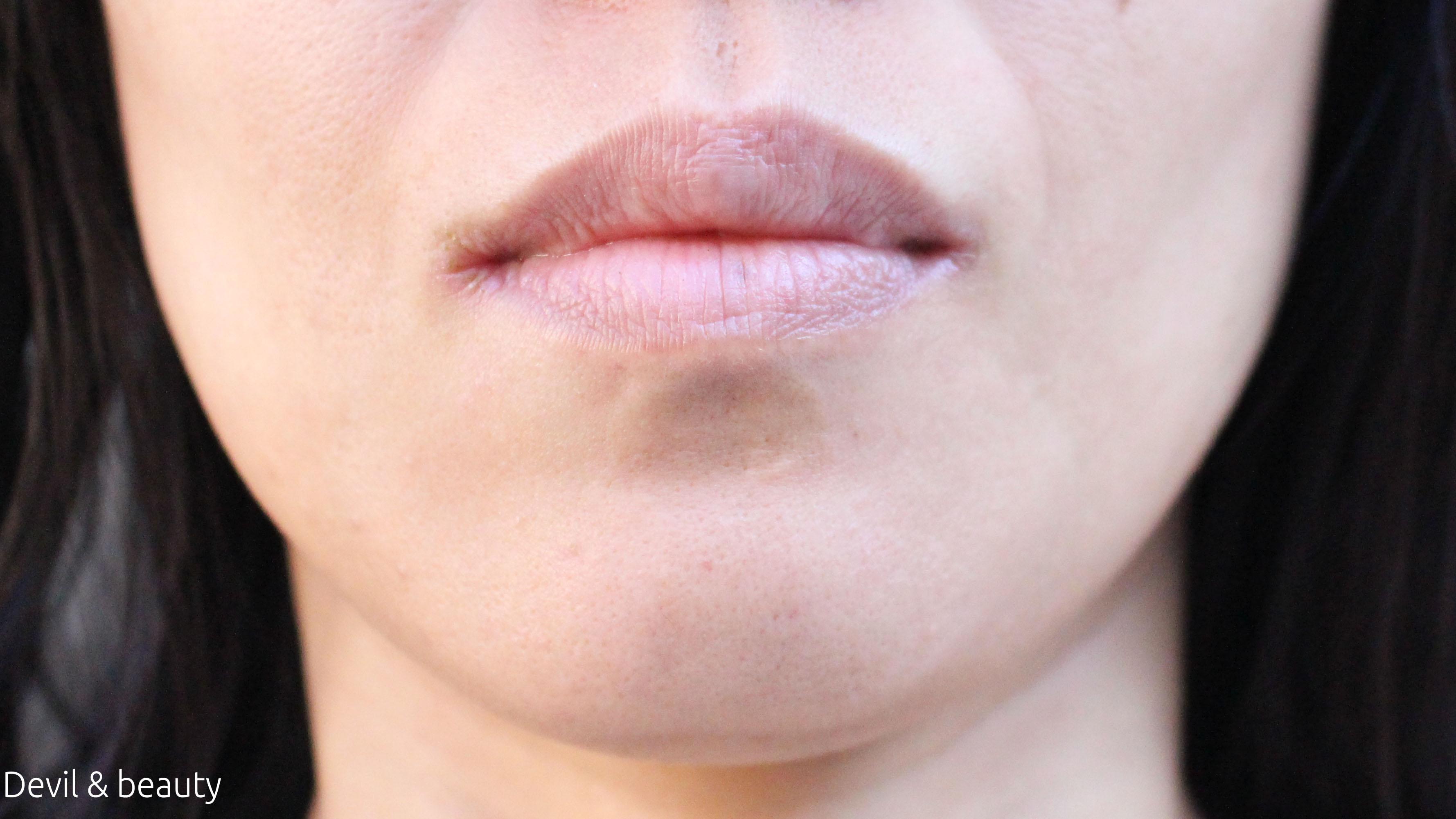 botox-chin5 - image