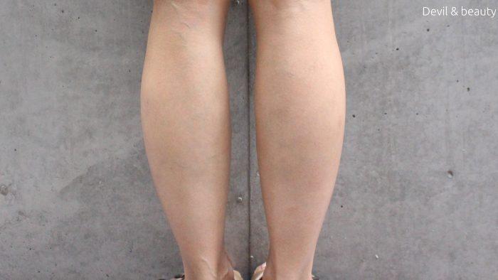 calf-botox-28days1-e1484559434592 - image