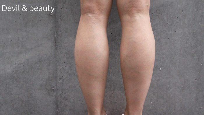 calves-before1